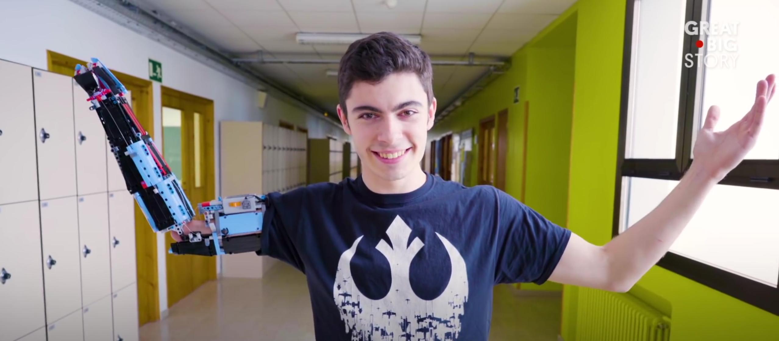 Il fabrique sa prothèse de bras en Lego